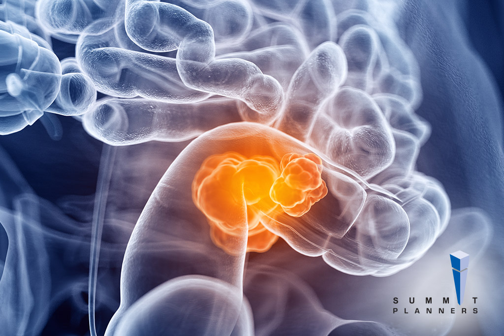 Things You Need To Know About Colorectal Cancer